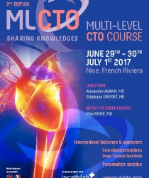2nd-mlcto-multi-level-cto-courses